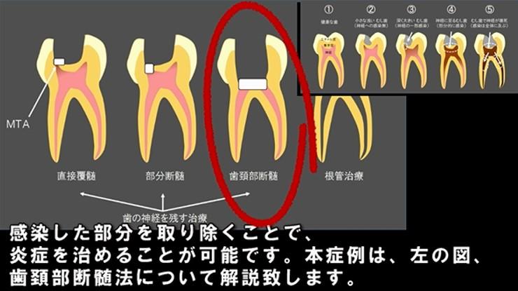 歯の神経を残す治療 直接覆髄法 部分断髄法 歯頚部断髄法 間接覆髄法