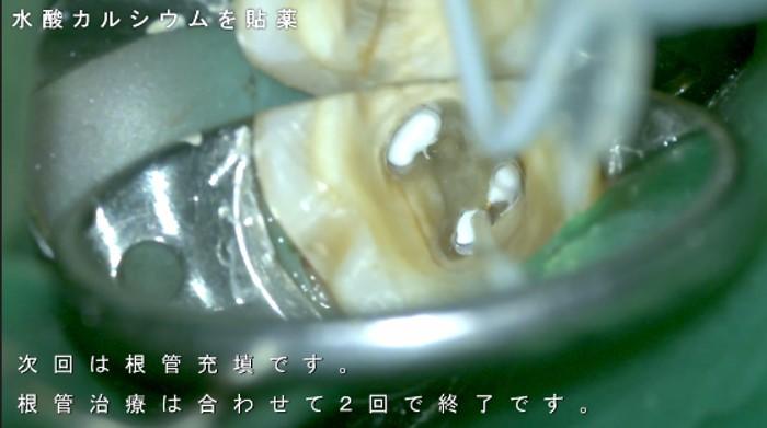 根管治療 水酸カルシウム