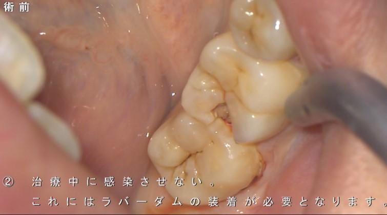 歯の神経をとる 抜く と云われた症例 神経取りたくない 画像 奥歯 痛くない