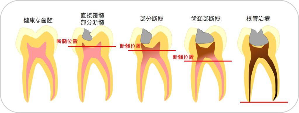 歯の神経を残す治療 歯の神経をとるデメリット 神経を取らない抜かない治療法 方法