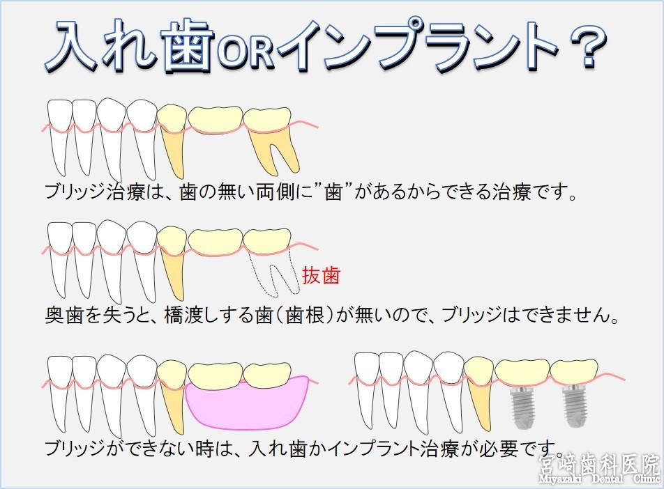 入れ歯orインプラント どっち 歯を抜いたらどうする インプラント ブリッジ 入れ歯 どれがいい?