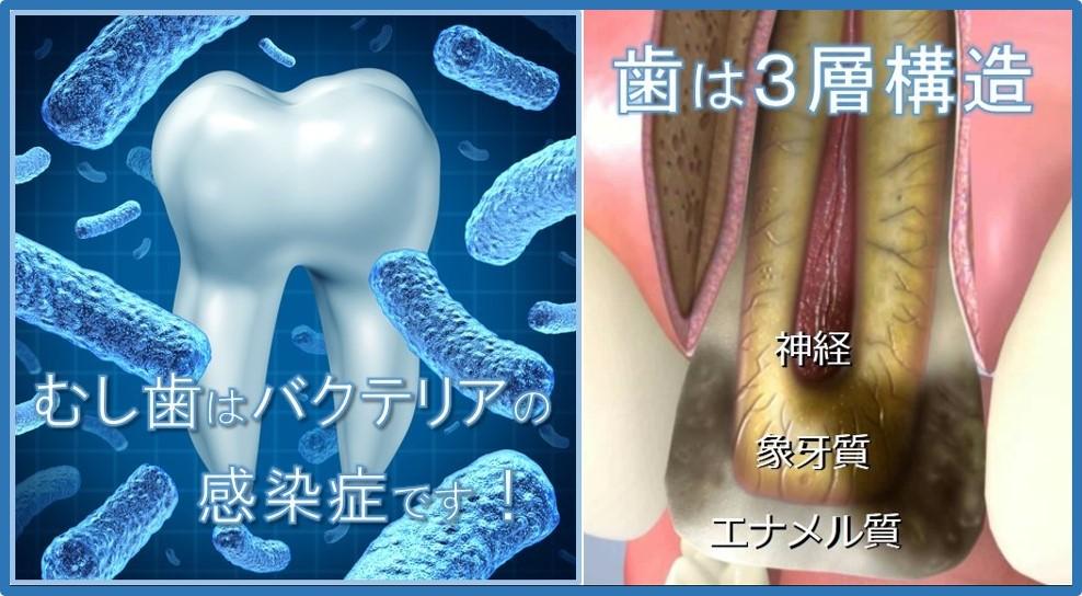 むし歯 細菌の感染症