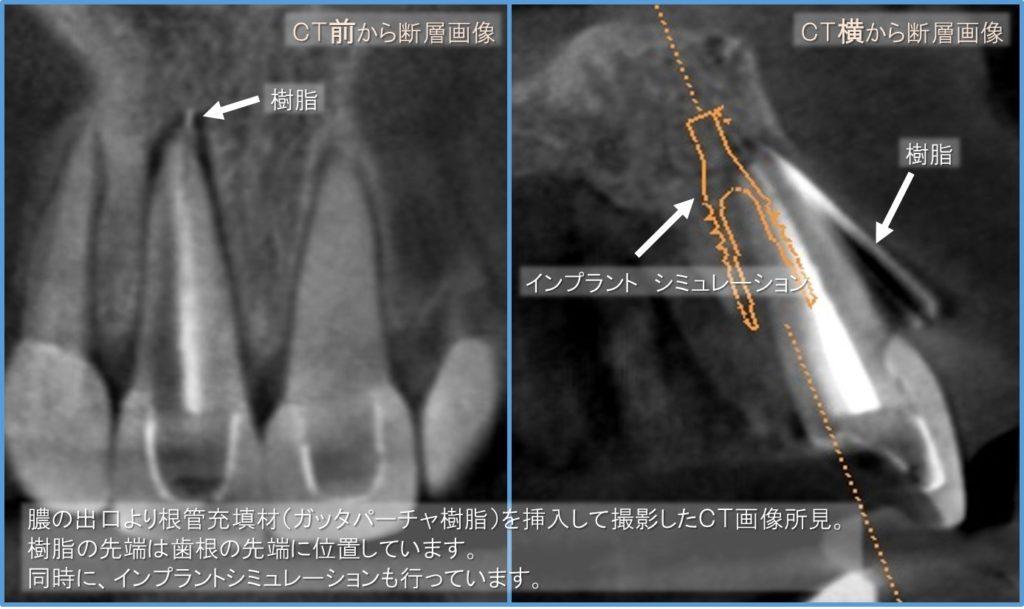 術前CT画像 ガッタパーチャ樹脂を挿入し、膿の原因を究明