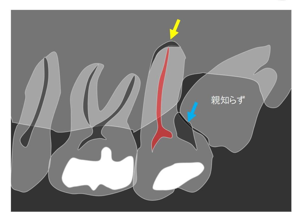 親知らずが横からはえてきて手前の歯が深いむし歯 根管治療神経の治療が必要と云われた 神経残したい 都内港区内幸町新橋虎ノ門日比谷霞ヶ関歯科歯医者日比谷 マイクロスコープ