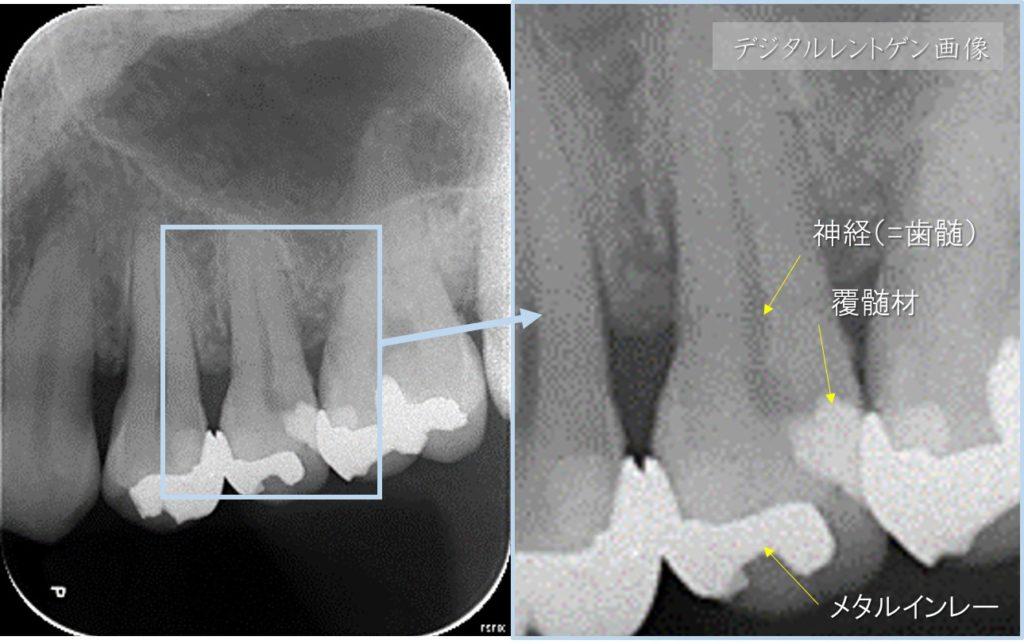 深いむし歯 神経に近い 神経に達している 露髄 根管治療が必要といわれた レントゲン画像 神経残す治療 対処法