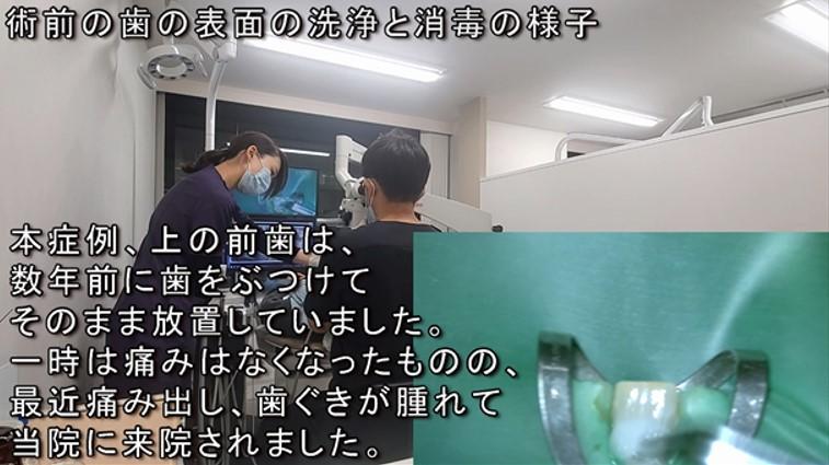 上顎前歯歯ぐき腫れる動画解説 歯髄壊死 神経が死んでいる 根管治療 マイクロスコープ ラバーダム