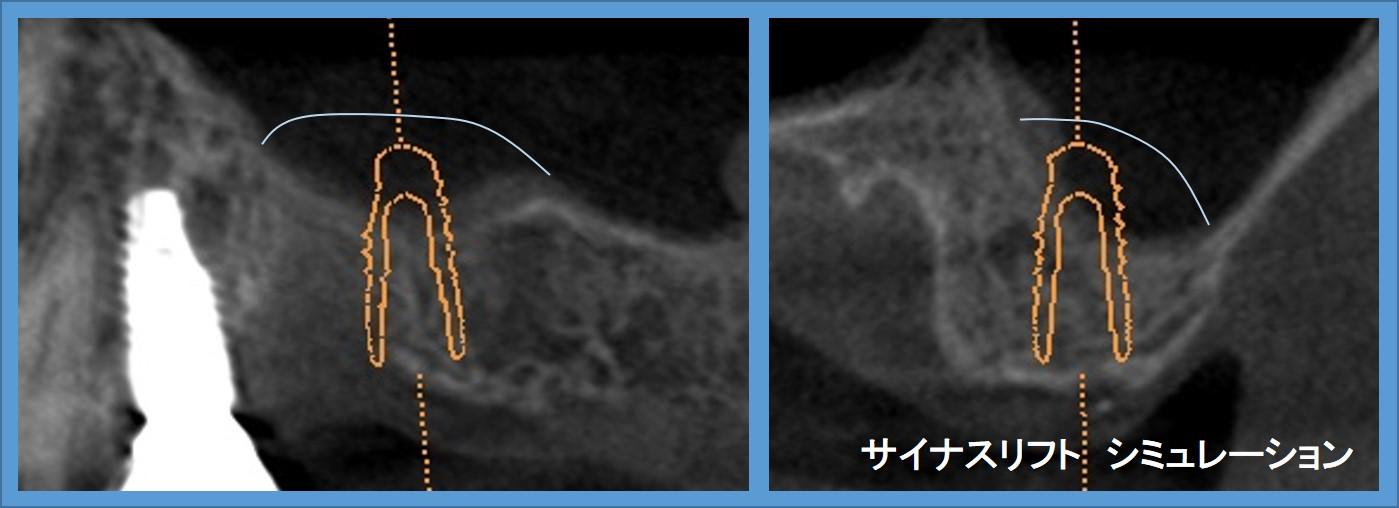 サイナスリフト 術前 シミュレーション インプラント手術