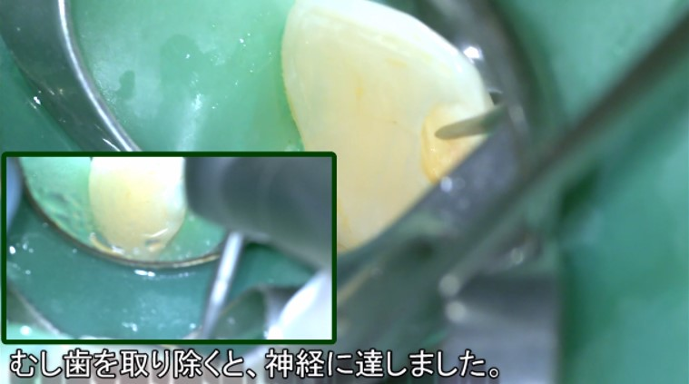 深いむし歯 露髄 神経残す MTA コンポジットレジン マイクロスコープ 削っている動画