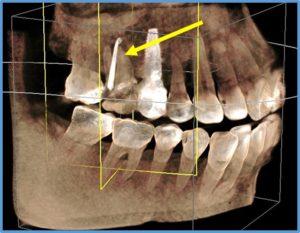 CT画像 歯ぐきが腫れている 神経が死んでいる 歯髄壊死 MTA失敗 根管治療