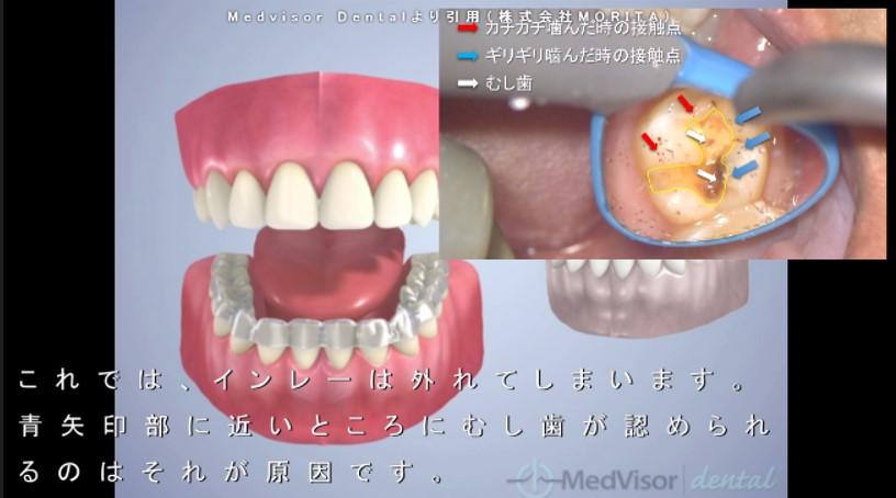インレー 詰め物 外れる ガムで 原因 むし歯とかみあわせ