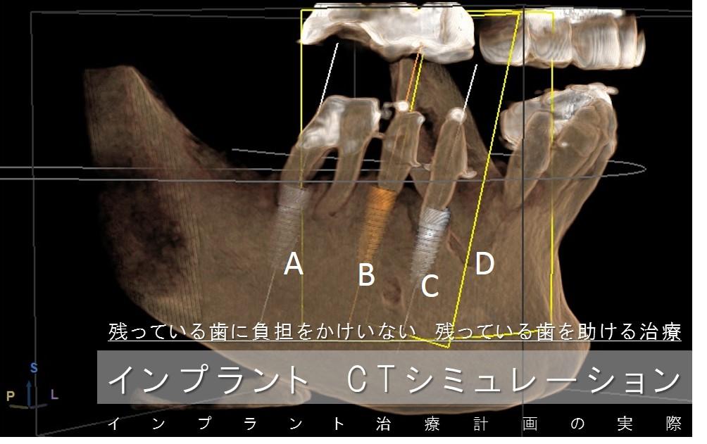 インプラントシミュレーション 治療計画 CT 手術室 抜歯即時インプラント手術