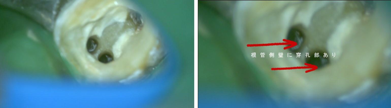 歯根の側壁に横に穴が空いている 抜歯を診断された 歯を残す MTAで穿孔部を封鎖する