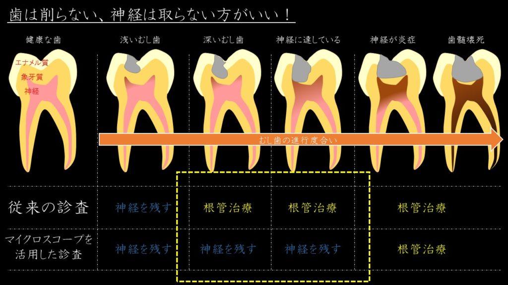 マイクロスコープ 歯の神経を残す治療 根管治療しない 出来るだけ残す 抜かない その根拠 治療法 2