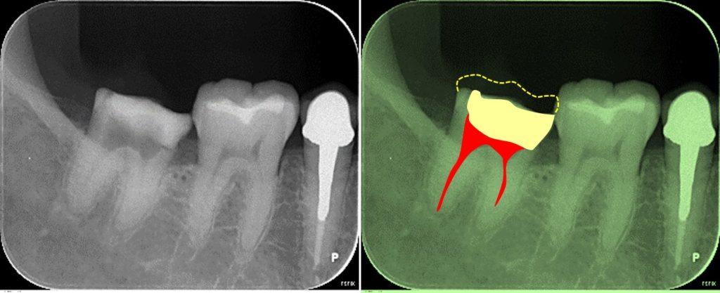 マイクロスコープ根管治療 レントゲン所見 ペリオドン(ホルムアルデヒド製剤) 下顎大臼歯 ラバーダム使用