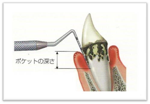 歯周病 歯周ポケット 診断の一助