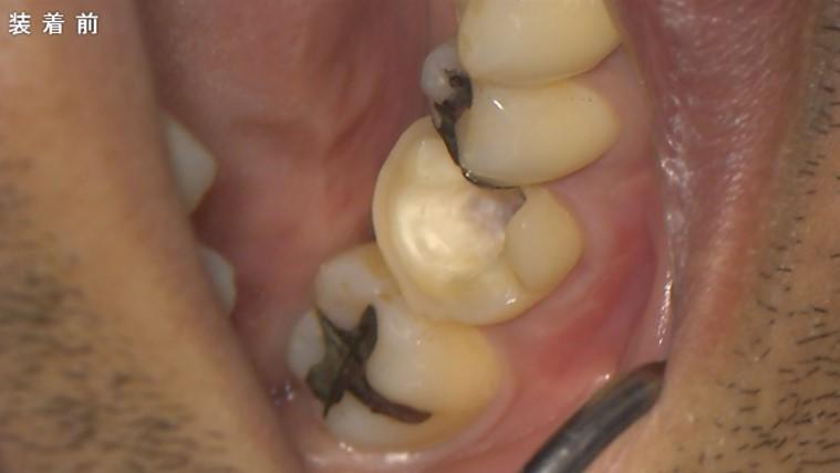 根管充填 大臼歯 根管治療後はできるだけ歯を削らない治療 歯が脆くなる 弱くなるので 術前セラミックポストアンレー