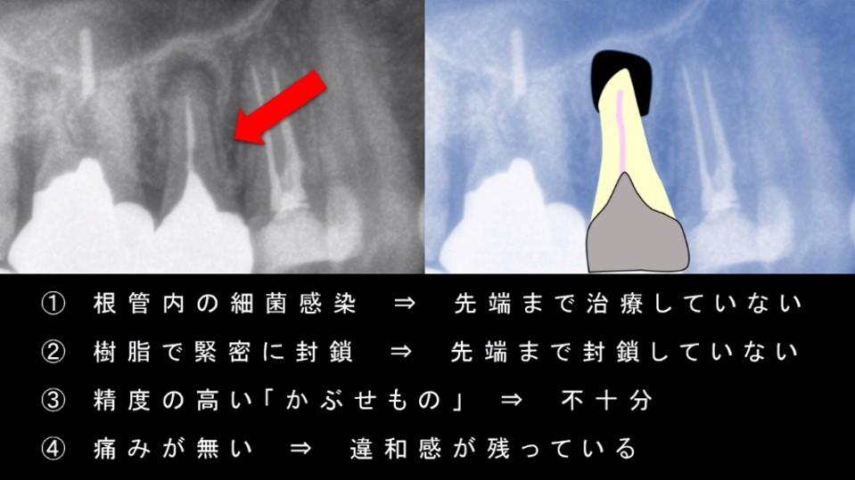 抜歯と診断される理由 その原因 抜きたくない 診断は適切か否か