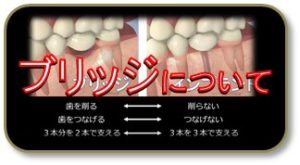 抜歯 歯を抜いた ブリッジ入れ歯インプラント