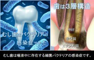 むし歯は唾液中に存在する細菌の感染症です