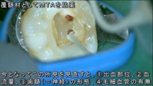 歯医者 神経が死んでしまった症例 歯の神経を残す治療とマイクロスコープラバーダム根管治療の実際の様子 動画で解説 歯髄 神経 にMTA