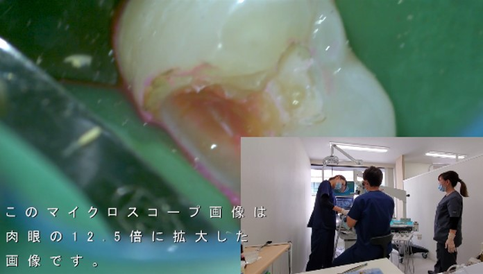 むし歯 徹底的に削る マイクロスコープ