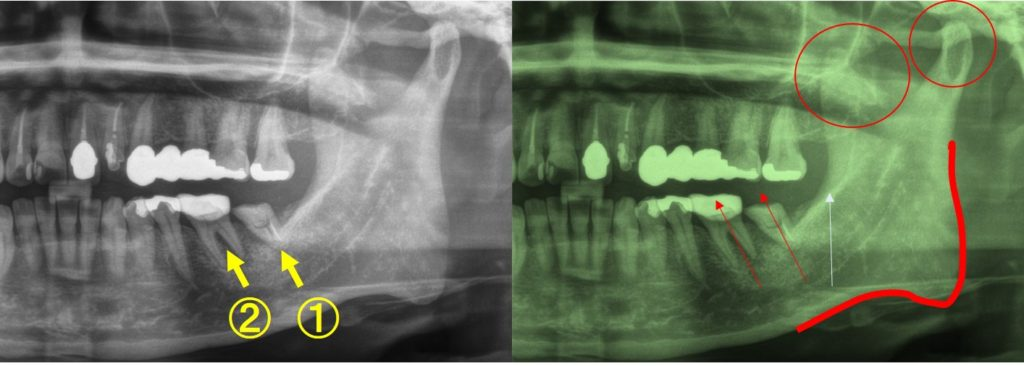 かみあわせ 根管治療 痛み 噛むと痛い 歯ぎしりが原因