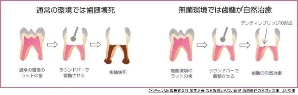 むし歯は唾液中に存在する細菌の感染症 kakehashi論文