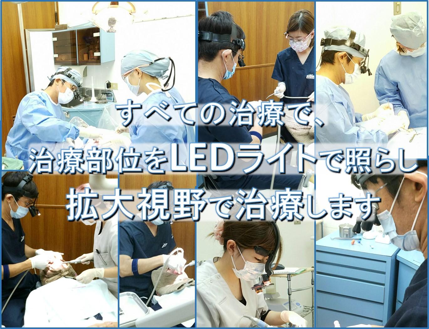 拡大鏡ルーペとは 歯医者 歯科