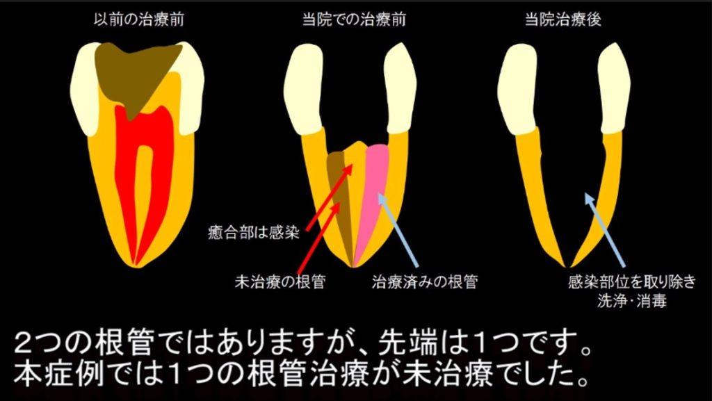 上顎第一小臼歯 2根管 18%が2根管で1根尖 イスムスを超音波チップで除去