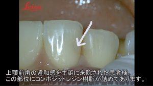 深いむし歯 露髄 神経残す MTA コンポジットレジン マイクロスコープ 2
