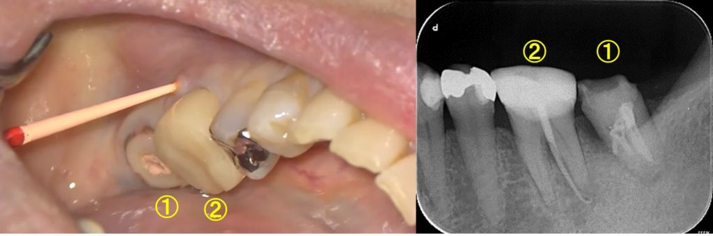 根管治療 やり直し 歯ぐきが腫れている マイクロスコープ ラバーダム 瘻孔フィステルにガッタパーチャ樹脂を挿入し 原因を突き止める方法①レントゲン所見とマイクロスコープ画像