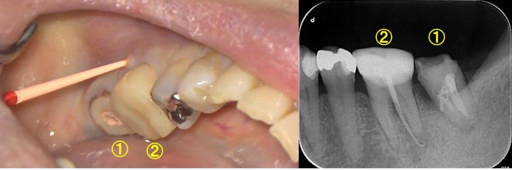 歯ぐきが腫れている 膿がでている 根管治療根っこの治療神経の治療 神経が死んでいる 対処法治療法 どの歯が痛いのかわからない 下奥歯