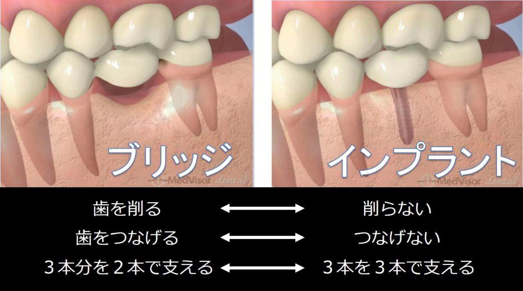 ブリッジ インプラント どっち 歯を抜いたら 抜歯した後 治療法