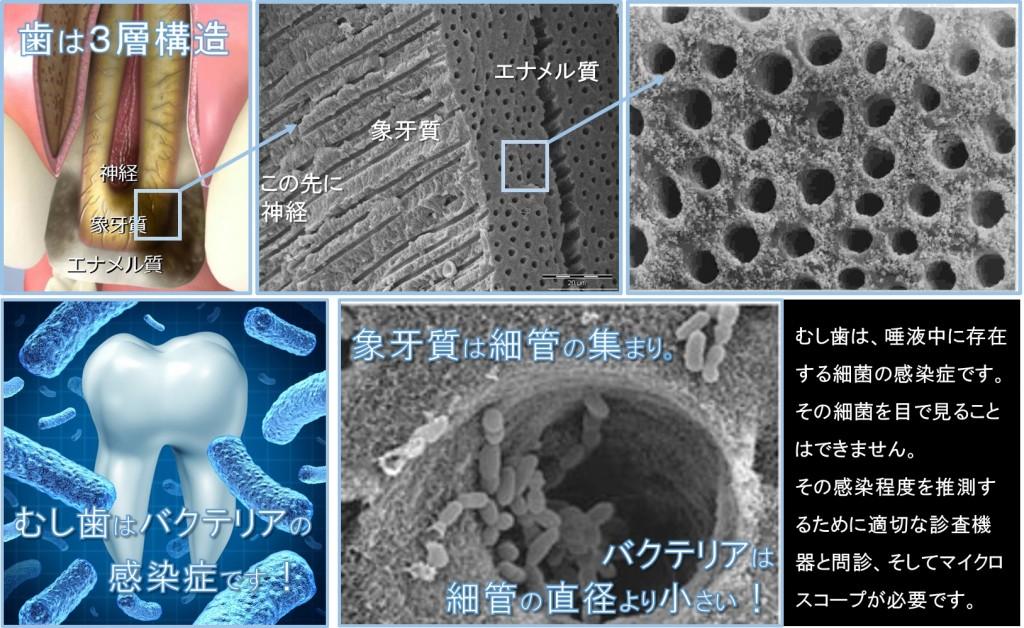 むし歯 細菌の感染症 根管治療 ラバーダム マイクロスコープ 神経を残す取らない抜かない治療