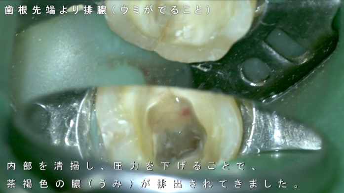 歯 膿んでいる うみ 痛い 腫れた ズキズキ 神経 根っこ 根管治療