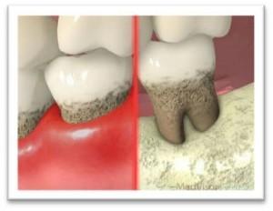 歯周病は症状なく進行する怖い病気です