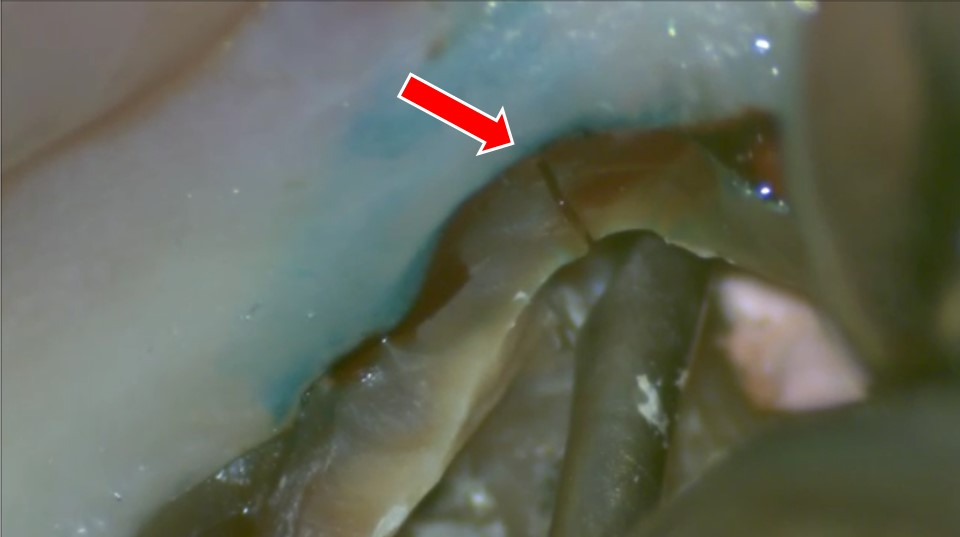 歯根が折れている 抜歯 治療法 対処法