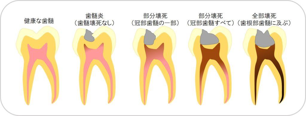 歯の神経を残すにはどうすればいいのか?その治療の基準は?根管治療・根っこの治療・神経の治療の基準は?東京都内内幸町新橋虎ノ門霞ヶ関の歯医者歯科