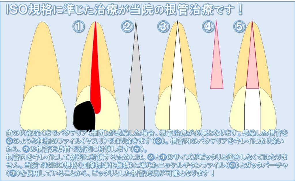 根管充填 CWCT 垂直加圧充填 ラバーダム マイクロスコープ 東京都内