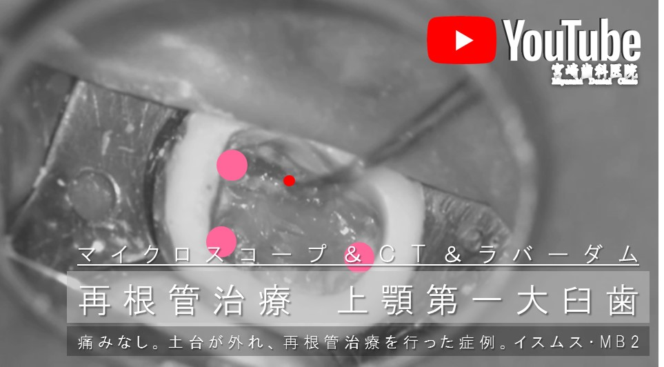 歯ぐきが腫れている 原因 神経が死んでいる 根管治療 神経根っこの治療 イスムス Mb2 専門医 マイクロスコープ ラバーダム 東京都内港区千代田区 歯医者