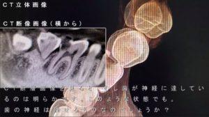 歯の神経をとる 抜く と云われた症例 神経取りたくない 画像 奥歯 痛くない レントゲン CT画像診査