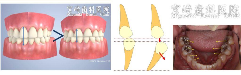 かみしめ くいしばり 舌のスペース 歯が倒れる 傾く 矯正