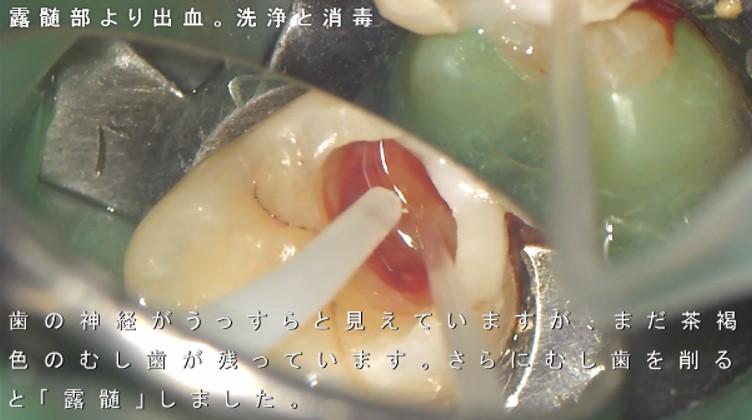出血 露髄 深いむし歯 歯の神経をとる 抜く と云われた症例 神経取りたくない 画像 奥歯 痛くない マイクロスコープ ラバーダム できるだけ削らない治療 齲蝕検知液 むし歯かどうか