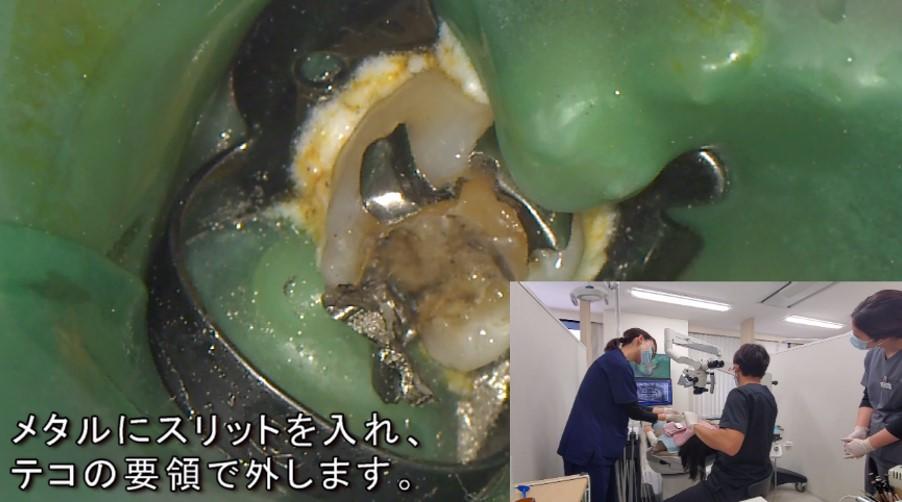メタルインレー 銀歯 詰め物 外す