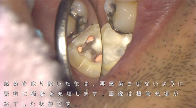 根管充填 大臼歯 根管治療後はできるだけ歯を削らない治療 歯が脆くなる 弱くなるので