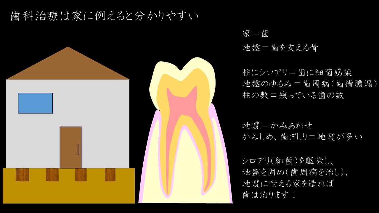 歯科治療のポイント むし歯 歯周病