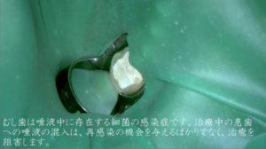 治療前より痛む 根管治療 仮封材 水硬性セメントのみ ペリオドン 口内画像ラバーダム装着